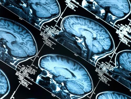 Mózg a nawyki